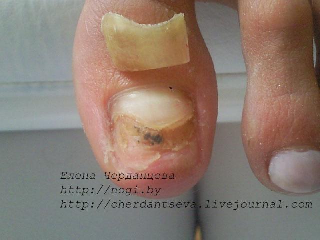 восстановить удаленную не заживает рана после удаления ногтя первыми